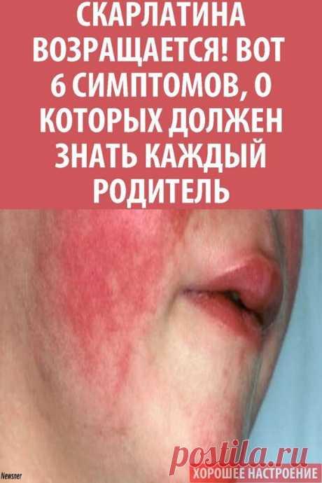 Скарлатина — это острое инфекционное заболевание, представляющее собой сочетание ангины с мелкой сыпью пурпурного цвета по всему телу. Сопровождается уплотнением лимфатических узлов, шелушением кожи. Болезнь опасна, так как заболевание часто протекает тяжело и имеет осложнения.