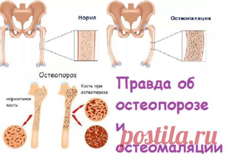 Правда об остеопорозе и остеомаляции | Советы целительницы