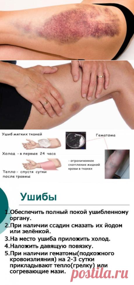 Отчего появляются синяки на теле: причины, симптомы, оказание первой помощи   Кладовая здоровья   Яндекс Дзен