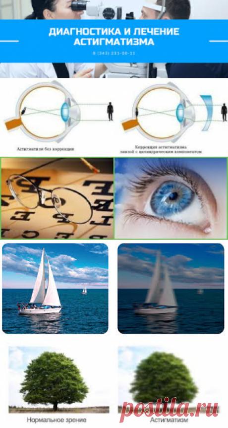 Можно ли восстановить зрение при астигматизме? Какое зрение при астигматизме? Нужно ли постоянно носить очки при астигматизме? Как узнать есть ли астигматизм?