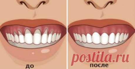 Домашние рецепты при проблемах с дёснами  Заметили оголение шейки зуба? У многих людей есть проблемы с тем, что оголилась шейка или корень зуба. Это вызывает дискомфорт и сопровождается очень неприятными болезненными ощущениями и приводит к …