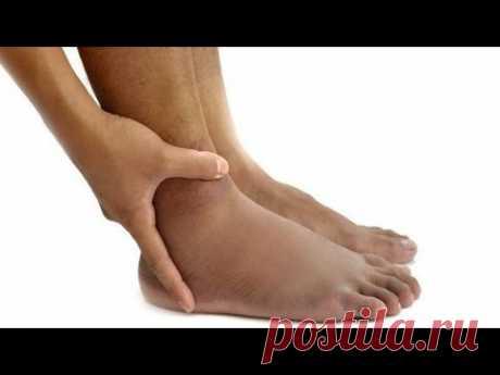 Лето. Что важно знать про отеки ног, трофические язвы и рожистое воспаление?