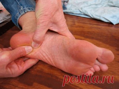 ¿Cómo librarse de la espuela de talón? | Fitoheel | Womans Health