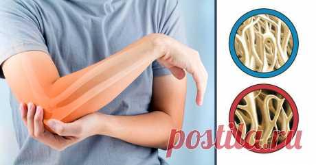 Витамины, которые укрепляют кости, регенерируют хрящи и снимают боль в суставах | саквояж знаний | Яндекс Дзен