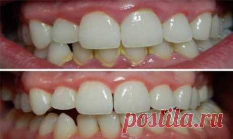 ¡Arreglar el ataque de dientes en 5 minutos sin visita al estomatólogo - es real!