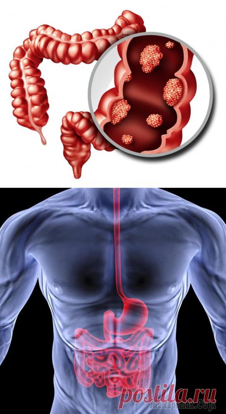 Тонкокишечные и толстокишечные свищи: причины, признаки, принципы лечения