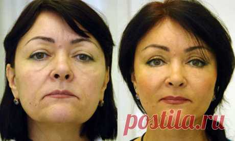 Подтяжка лица без пластической хирургии!