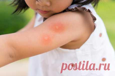 Как моментально убрать зуд после укуса комара | Делимся советами