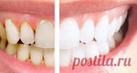 Домашние средства от воспаления дёсен Не обращать внимания на зубной камень и желтый налет — большая ошибка, потому что проблема в этом случае не только эстетическая: бактерии могут привести к воспалению десен, также известному как гингивит.