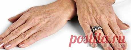 Возрастные пятна – причины и способы устранения