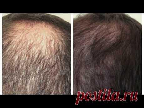 Как отрастить волосы? Домашняя маска для роста волос.