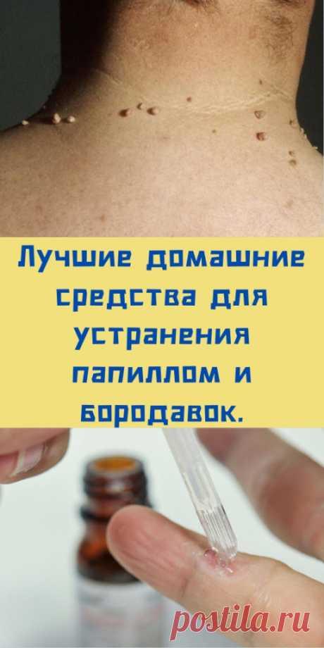 Лучшие домашние средства для устранения папиллом и бородавок. - likemi.ru