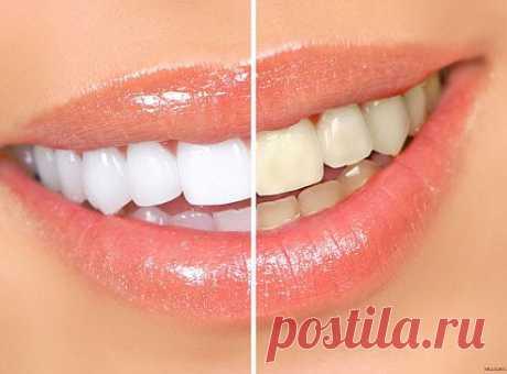 Отбеливаем зубки! )))
