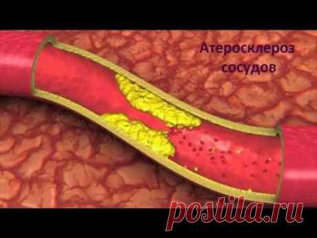 Атеросклероз сосудов. Собственный опыт лечения атеросклероза.