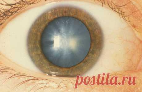 Экспериментальные глазные капли растворяют катаракту