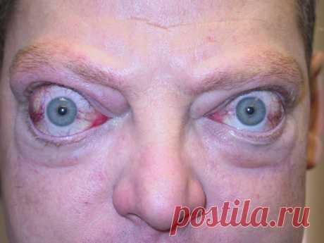 Экзофтальм — выпячивание одного или двух органов зрения, иногда со смещением вбок, встречается в любом возрасте и не зависит от пола человека. Заболевание характеризуется непроизвольным выпиранием глазных яблок вперед, редко вызывает нарушение зрительной способности. Другие названия болезни — протрузия или