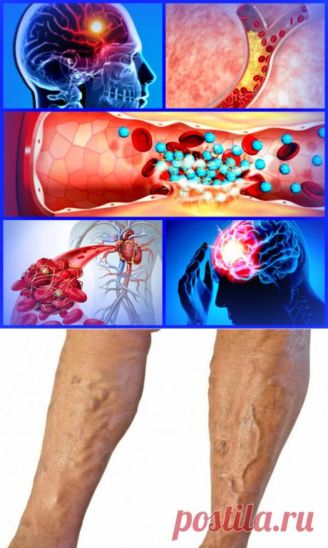 Откуда берутся тромбы и насколько они опасны? | Здравник | Яндекс Дзен