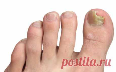 Лечение грибка ногтей народными средствами — самые эффективные методики Поражение ногтевой пластины и окружающей ее кожи может свидетельствовать о развитии микоза. Грибок распространяется с невероятной скоростью, поэтому лечение заболевания следует начать незамедлительно.