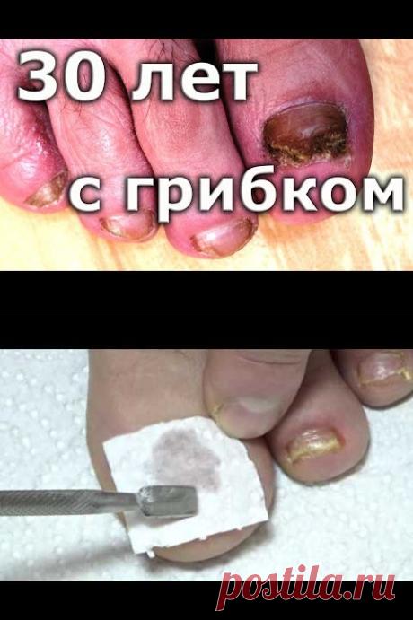 ВЫЛЕЧИЛ грибок ногтей спустя 30 лет / Лечение грибка ногтей на ногах - YouTube