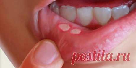 Стоматит ротовой полости: вот как избавиться от него народным методом за считанные минуты, без каких-либо медикаментов! — СОВЕТ !!!