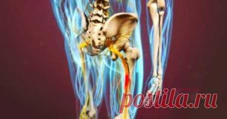 Разблокируй седалищный нерв: делай ЭТИХ 2 простых упражнения, чтобы избавиться от боли Седалищный нерв является самым крупным из всех нервов нашего тела. Начинаясь в области пояснично-крестцового сплетения, его волокна проходят через всю ногу, обеспечивая ее иннервацию. В связи с этим з…