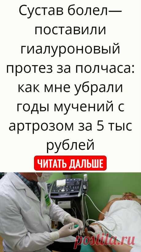 Сустав болел— поставили гиалуроновый протез за полчаса: как мне убрали годы мучений с артрозом за 5 тыс рублей
