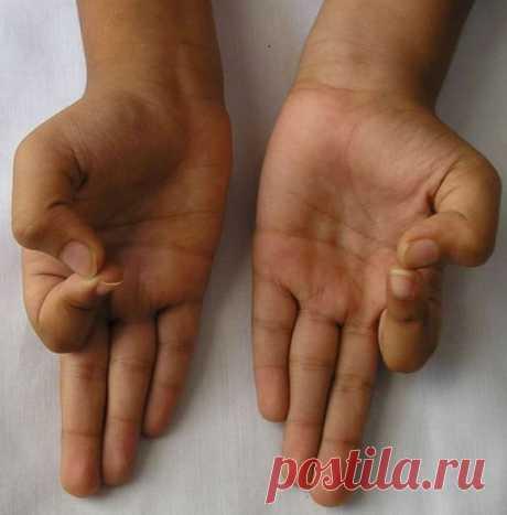 Когда Вы держите пальцы подобным образом, с организмом происходит нечто невероятное!  Если мы взглянем на мир, который находится вокруг нас, к сожалению, увидим много боли и страданий. Самое ужасное то, что все это может происходить с нами! Помимо традиционной медицины, таблеток, обез…
