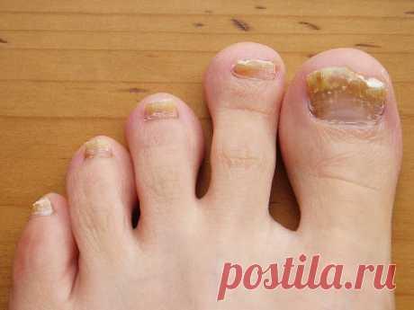 Вот четыре простых средства от грибка ногтей. Они потрясающе эффективны! Натуральные и безвредные!