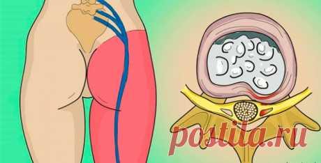 ВСЕ по ТЕМІ: Есть 1 упражнение, которое реально избавляет от болей в пояснице! Приструнить седалищный нерв.