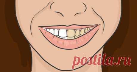 Делаю так перед чисткой зубов каждый раз! Забыла, как выглядит стоматолог…
