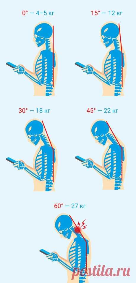 Чем опасен синдром компьютерной шеи икак избежать необратимых для здоровья последствий