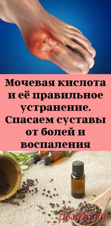 Мочевая кислота и её правильное устранение. Спасаем суставы от болей и воспаления