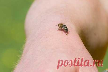 Скорая помощь. Что делать, если вы обгорели или вас укусила пчела?
