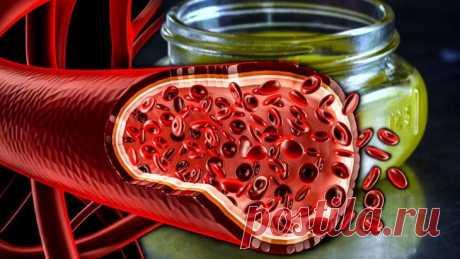 10 народных средств для чистки сосудов в домашних условиях от холестериновых бляшек