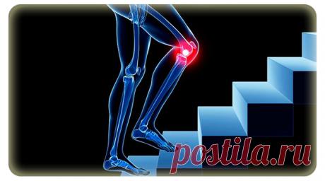 Причины болей в коленях при подъеме и спуске по лестнице