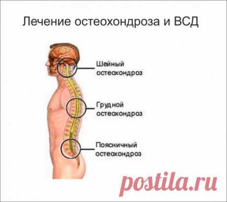 Поразительное открытие в лечении остеохондроза
