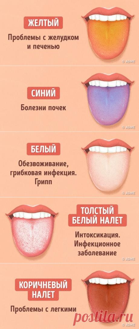 12 проблем, о которых может рассказать цвет языка