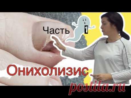 Онихолизис - механические повреждения (самая крутая лекция в рамках ютуба) #podolog#goloh#онихолизис