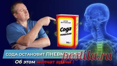Об этом молчат врачи - СОДА остановит ПНЕВМОНИЮ! Как вылечиться без лекарств? Пневмония