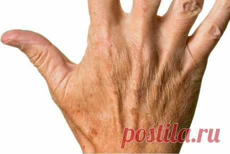 Как избавиться от сухости и пигментных пятен на руках: пошаговый рецепт | 50+ | Яндекс Дзен