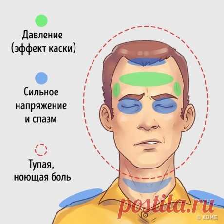 5типов головной боли испособы быстро отних избавиться