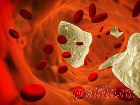 «АТЕРОЛ от холестерина ✅ купить в России, цена в Аптеке iMed  ☝ Препарат Атерол (Aterol) от холестерина необходим всем тем, кто заботится о состоянии здоровья и самочувствия. ⚡ Быстрая доставка до России, без предоплаты!