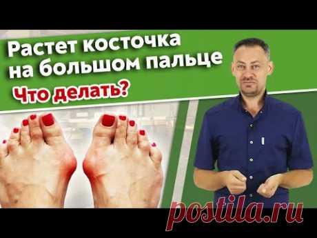 Hallux valgus / Почему торчат косточки на пальцах ног?
