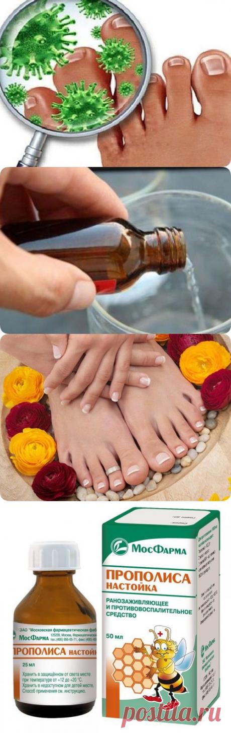 Три рецепта лечения грибка ногтей - be1issimo.ru