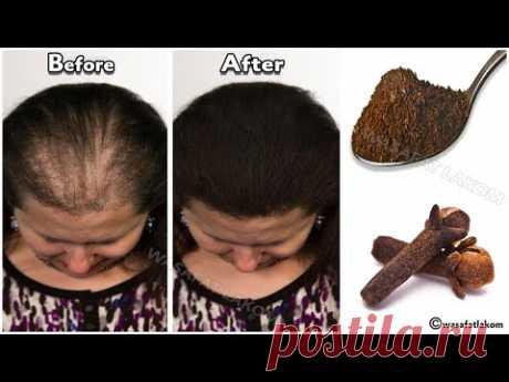 Индийский секрет 🌿 для ускорения роста волос и лечения облысения с первой недели.