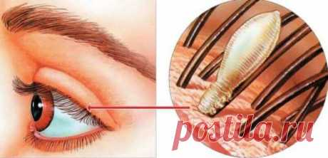 Почему наращивание ресниц может быть опасно для здоровья Наращенные ресницы, приклеенные по одной к существующим, могут привести к появлению клещей под названием железницы. Железницы, он же ресничные вши, могут вызвать покраснение, воспаление, кровотечение из глаз и закупорку сальных желез, а также может способствовать таким состояниям, как блефарит, блефароконъюнктивит и блефарокератит. Для лечения железницы специалисты рекомендуют масло чайного дерева, которое пациенты м...