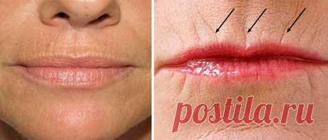 Как убрать морщины над верхней губой: салонные процедуры и народные средства — Мир интересного