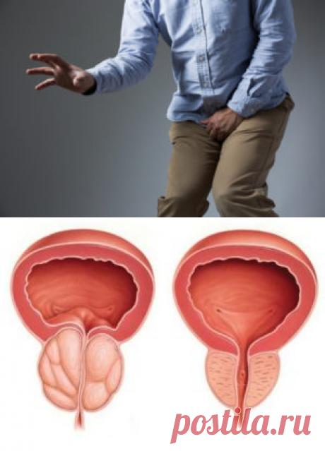 Простатит - симптомы и лечение у мужчин