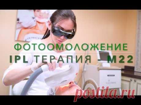 Лечение купероза на лице лазером в клинике Градиент