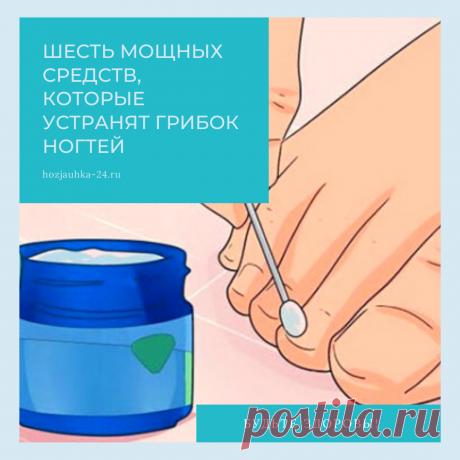 Грибок ногтя — это тип грибковой инфекции, которая возникает, когда грибковый дерматофит начинает расти под ногтем. Обычно это делает ноготь толстым, желтым и хрупким.